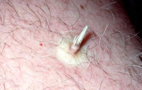Кожный рог следует удалять с гистологией – под его маской может скрываться ороговевающая форма плоскоклеточного рака