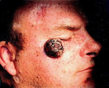 Экзофитная неороговевающая форма плоскоклеточного рака кожи