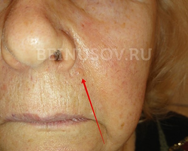 рак кожи диагностика и лечение