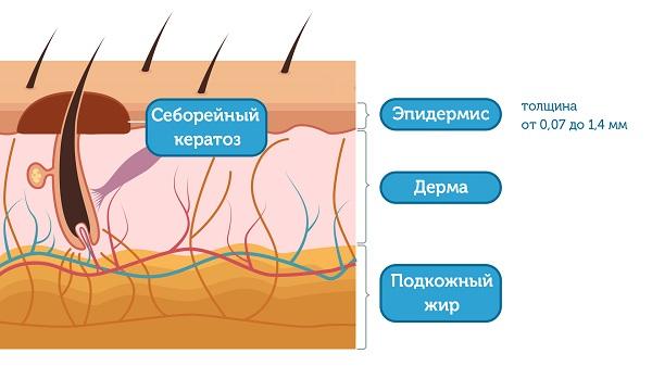 Структура кожи с образованием в пределах эпидермиса