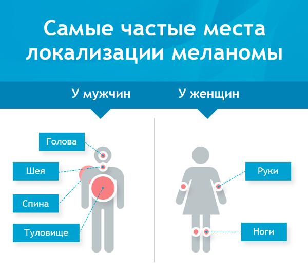 Где чаще всего располагается меланома у мужчин и женщин
