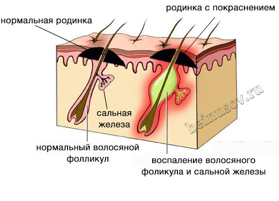 Удалить папилломы в домашних условиях хозяйственным мылом