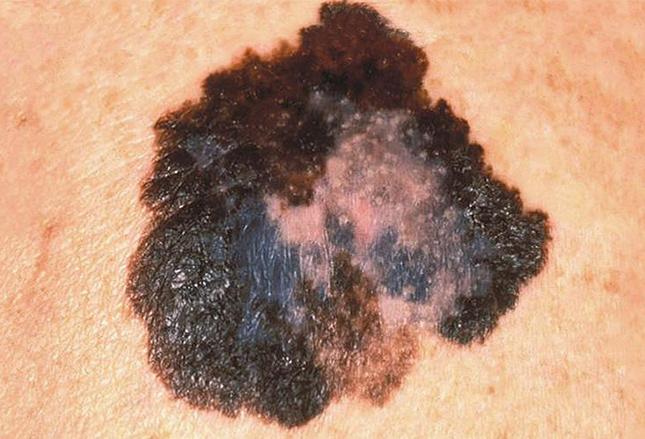 участки депигментации и неравномерная окраска при меланоме