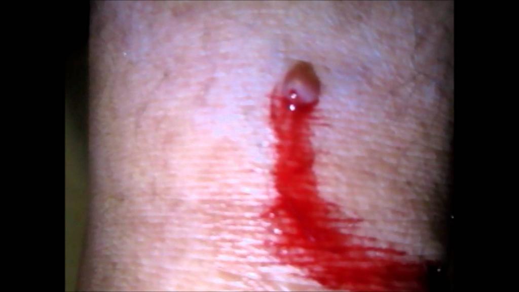 спонтанная кровоточивость при меланоме.png